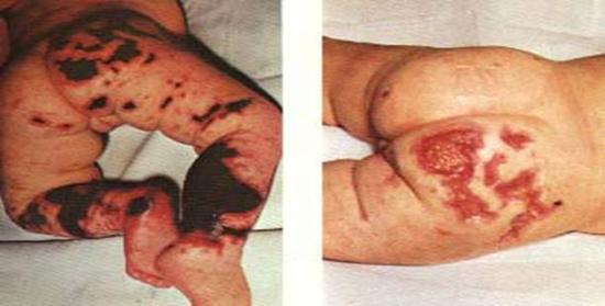 менингококцемия у детей (фото)