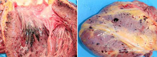 кровоизлияния в эндокард и перикард