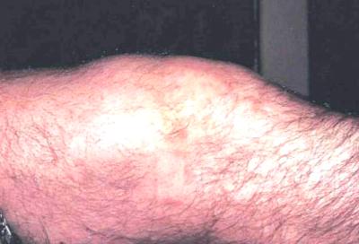 артрит и менингококковая инфекция