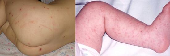 менингококковая инфекция у детей (фото)