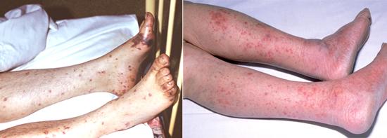 геморрагически-некротическая полиморфная сыпь