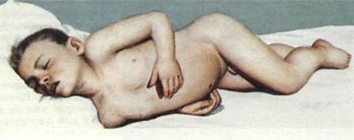 менингит у ребенка (фото)