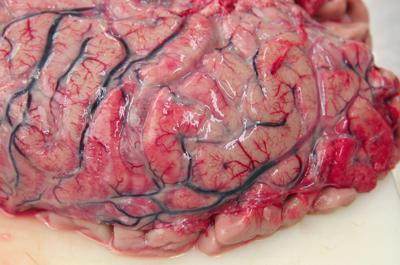 менингококковый менингит (фото)