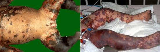 менингококковая инфекция (некроз кожи)
