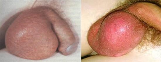 орхит при свинке (фото)