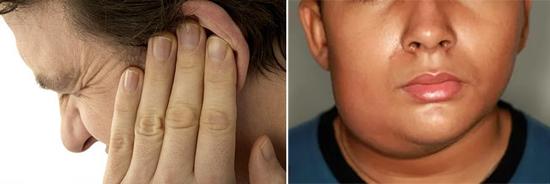 симптомы паротита у детей и взрослых (фото)