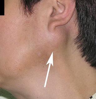 опухоль слюнной железы у взрослого (фото)