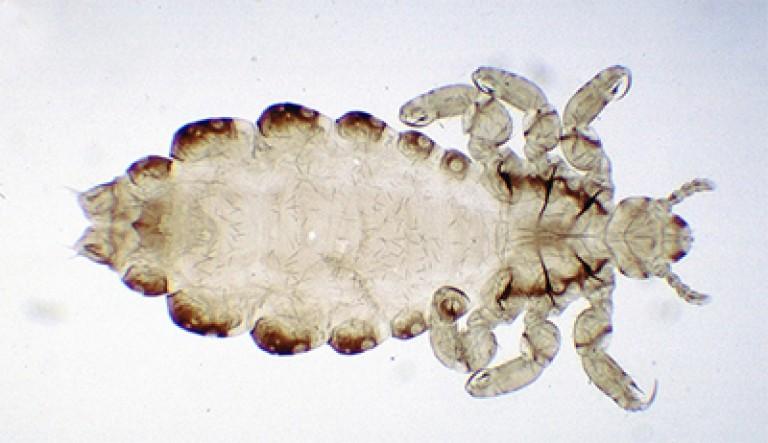 что вша под микроскопом картинки сша пластинка появилась