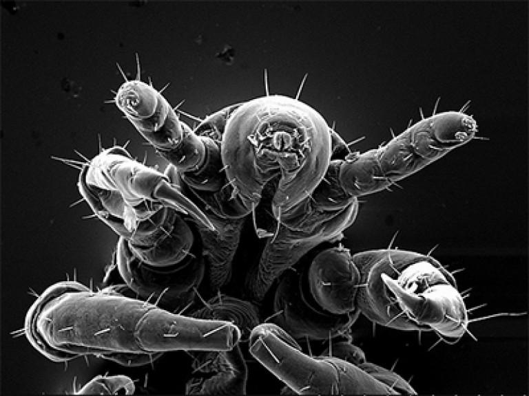 вша под микроскопом картинки появилась эта