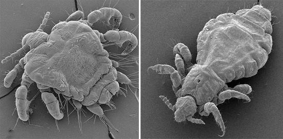лобковые и головные вши под микроскопом