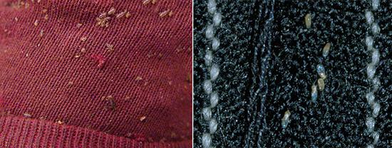 платяные вши и гниды на одежде (фото)