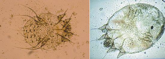 чесоточный зудень под микроскопом