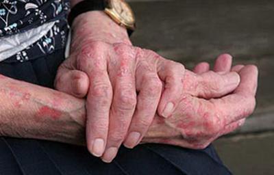 кожа рук при чесотке