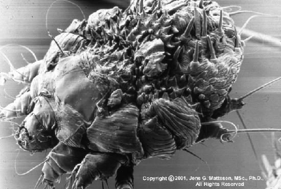 возбудитель чесотки чесоточный клещ (Sarcoptes scabiei hominis, чесоточный зудень)