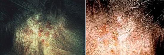 пиодермия (гнойничковое поражение кожи)