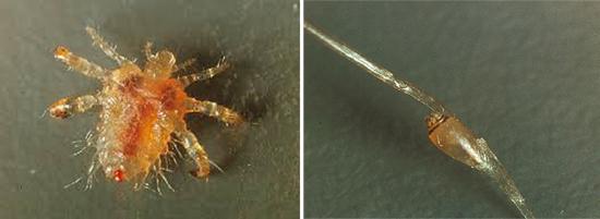 лобковая вошь и гнида (фото)