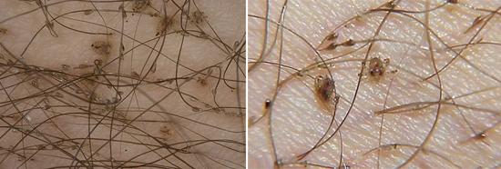 лобковые вши и гниды (фото)