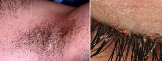 лобковые вши и гниды в подмышечной области и на ресницах (фото)