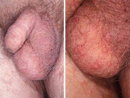 дерматит при педикулезе (фото)