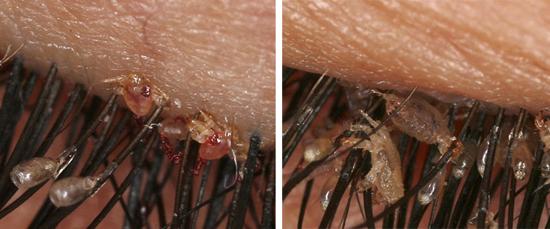 гниды лобковых вшей (фото)
