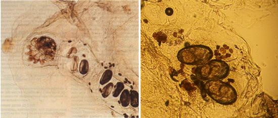 микроскопия соскобов при чесотке