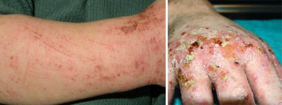 повреждения кожи при расчесах и чесотке