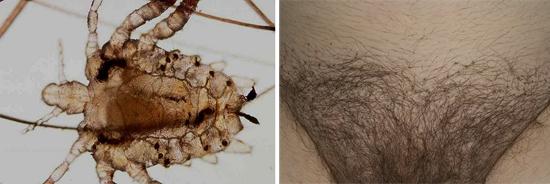 лобковая вошь и гниды