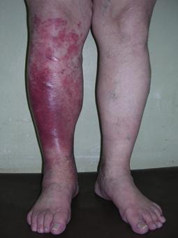 рожа Рожа (erysipelas) на ноге erysipelas