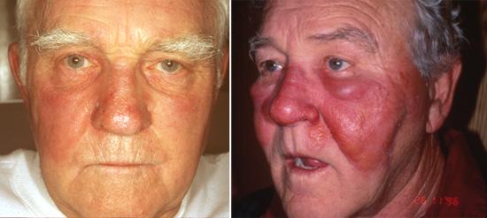 рожистое воспаление у пожилых людей