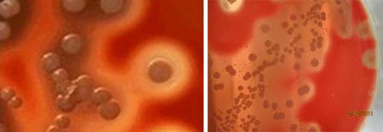 бета-гемолитические стрептококки группы А
