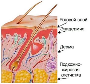 дерма