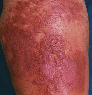 рожистое воспаление кожи фото
