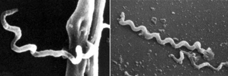 Бледная спирохета в электронном микроскопе