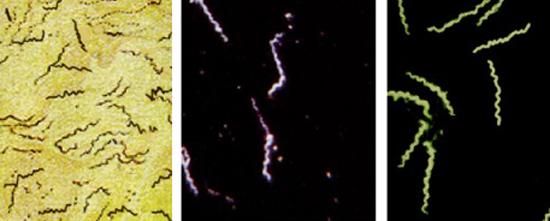 фото бледные трепонемы под микроскопом