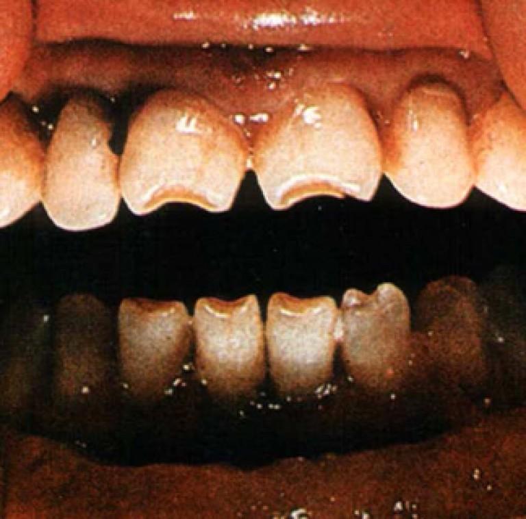 Что такое гетчинсоновские зубы