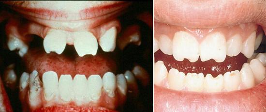 зубы при врожденном сифилисе