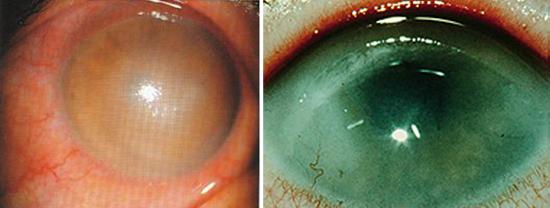 паренхиматозный кератит при позднем врожденном сифилисе