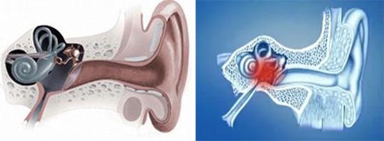 воспаление лабиринта, периостит, поражение слухового нерва сифилис
