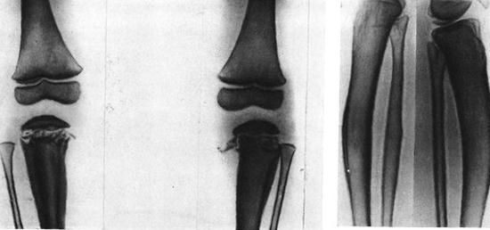 сифилитический остеохондрит периостит фото