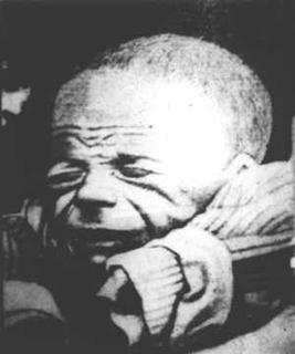 сифилис ребенок фото
