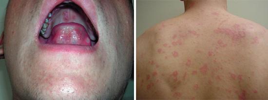 проявления вторичного периода сифилиса (фото)
