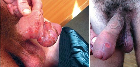 осложнения первичного сифилиса