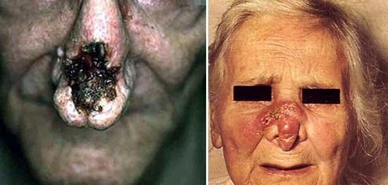 лицо, обезображенное сифилисом