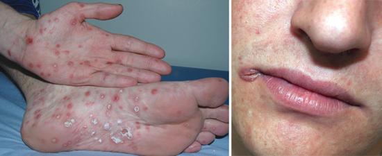 проявления вторичного сифилиса (фото)