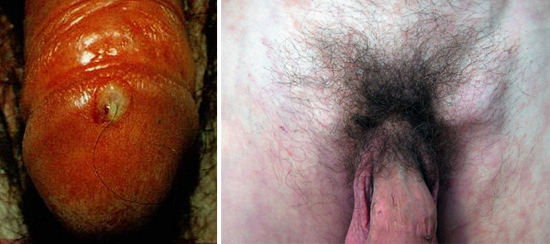 признаки первичного периода сифилиса