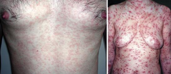 сыпь при сифилисе второго периода папулезный сифилид