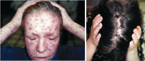 симптомы сифилиса вторичного периода