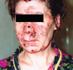 импетигинозный пустулезный сифилид лица