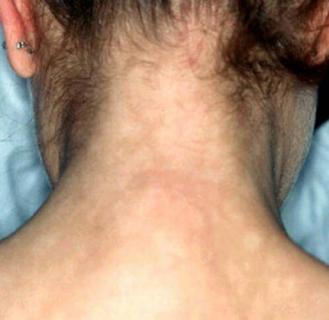признак сифилиса вторичного периода