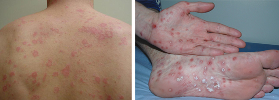 признаки вторичного сифилиса